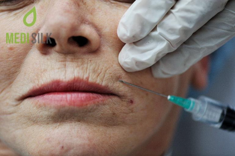 foto de How Much Does Botox Cost? • Medisilk