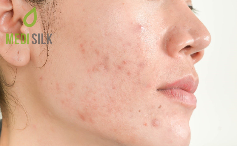 Atrophic acne scars