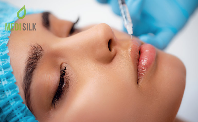 How Long Does Juvederm Last in Lips?